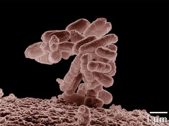 E coli, Wikimedia Commons